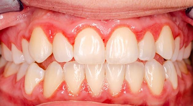 Viêm lợi sau khi bọc răng sứ do còn sót xi măng phục hình (ảnh minh họa)
