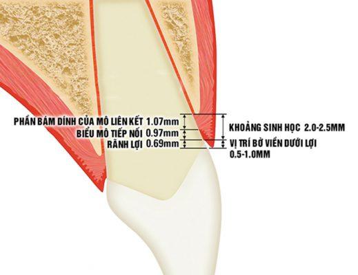 Viêm lợi sau khi bọc răng sứ do vi phạm khoảng sinh học (ảnh minh họa)