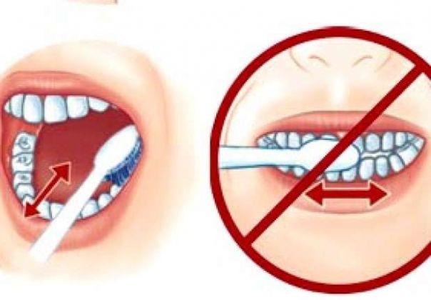 mảng bám trên răng
