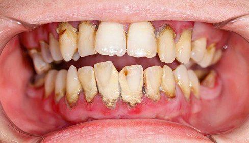 tiêu xương chân răng