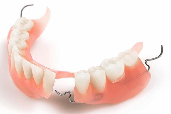 Trồng răng giả có làm hôi miệng hay không?