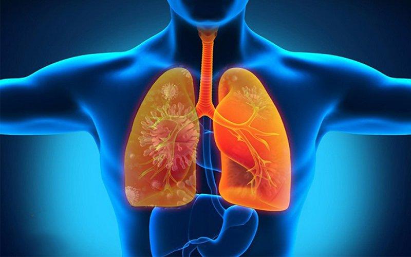 Viêm phổi cũng có thể gây nên mùi hôi miệng (ảnh minh họa)