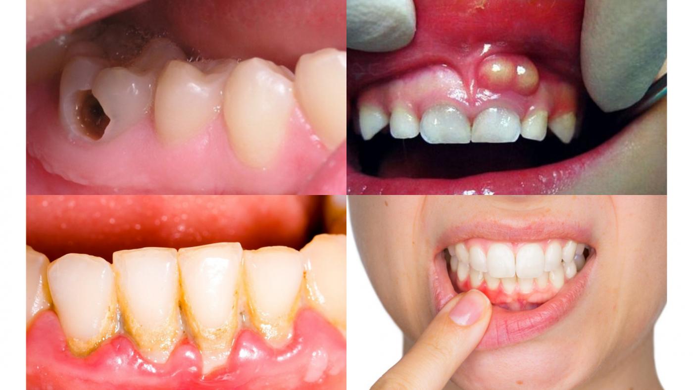 Hôi miệng nặng do các bệnh lý về răng (ảnh minh họa)