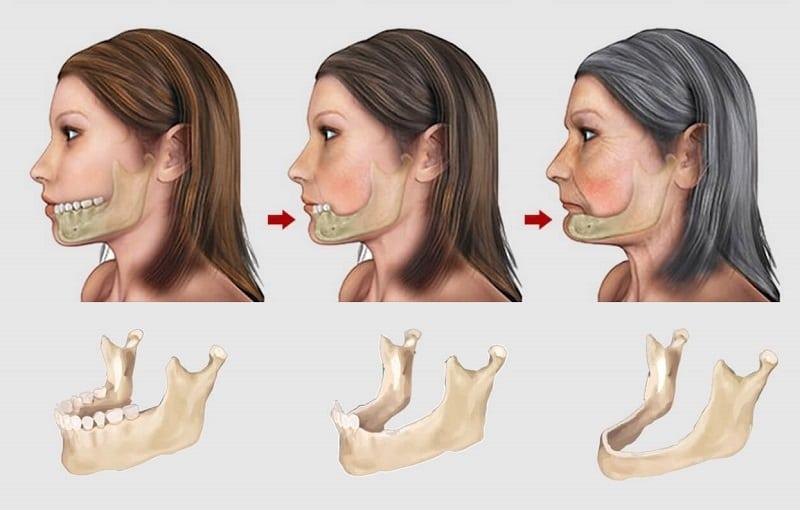 Mất răng gây ra tình trạng lão hóa sớm (ảnh minh họa)