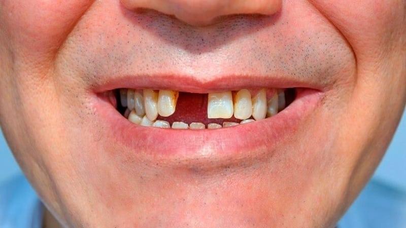 Tai nạn là nguyên nhân gây mất răng (ảnh minh họa)