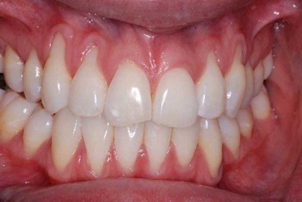 Răng sứ bị tụt lợi (ảnh minh họa)