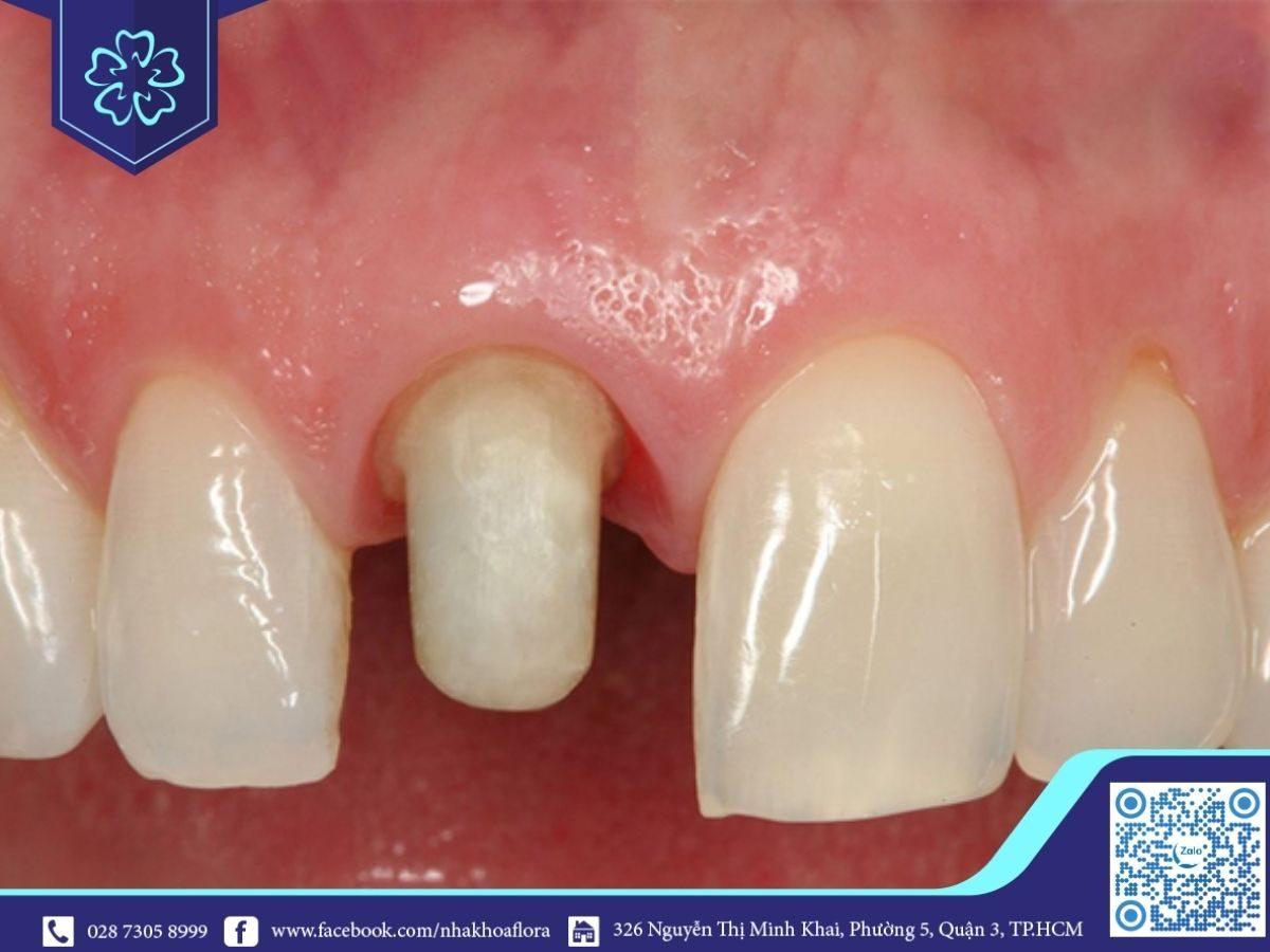 Bọc răng sứ khiến cấu trúc răng bị thay đổi (ảnh minh họa)