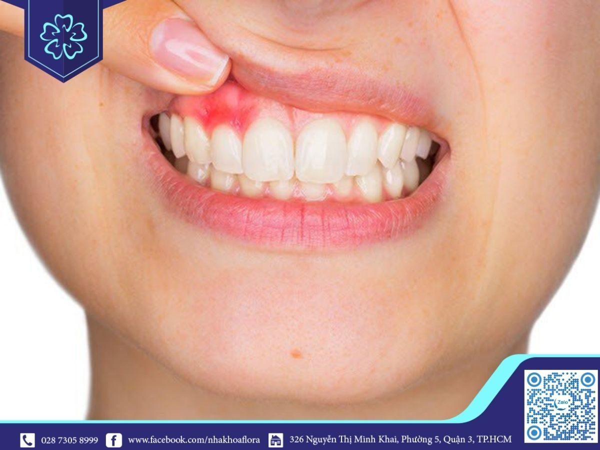Làm răng sứ có nguy cơ xuất hiện viêm lợi, gây đau nhức (ảnh minh họa)