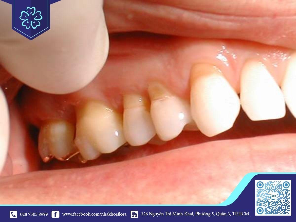Bọc răng sứ giá rẻ gây hở cổ chân răng, mất thẩm mỹ (ảnh minh họa)