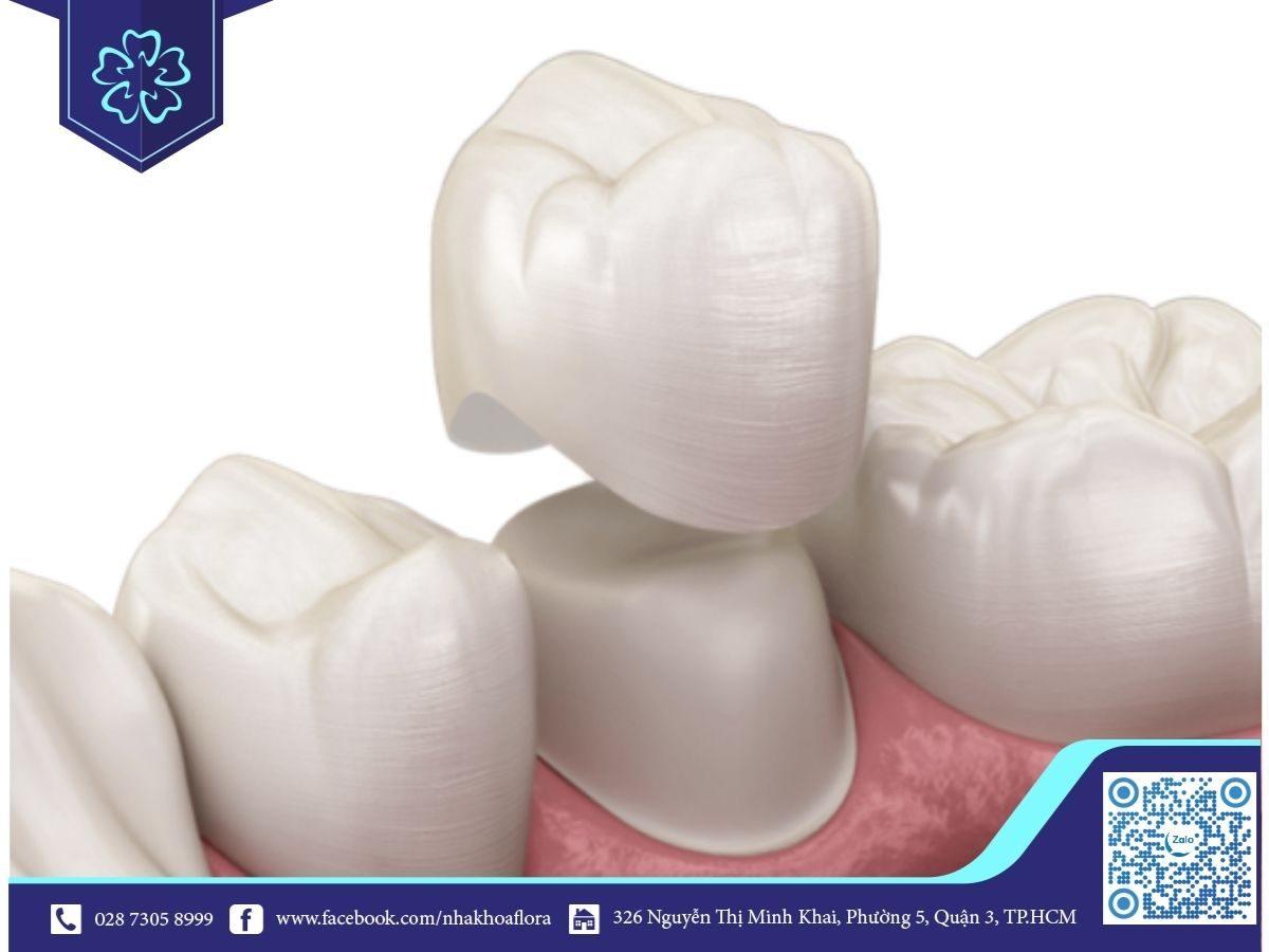 Bộc răng sứ bị cộm khiến bạn cảm thấy đau nhức (ảnh minh họa)