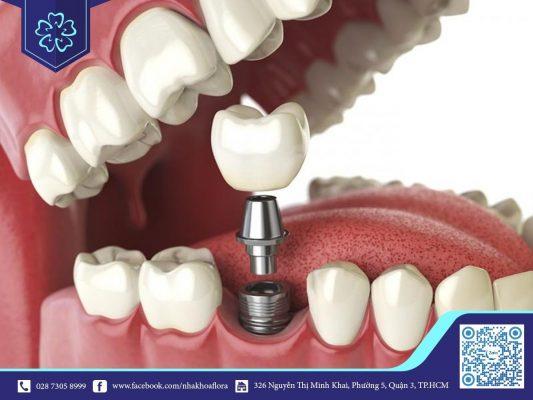 Trồng răng Implant khắc phục hoàn toàn tình trạng tiêu xương, xóa tan nổi lo mất răng bao lâu thì tiêu xương hàm (ảnh minh họa)