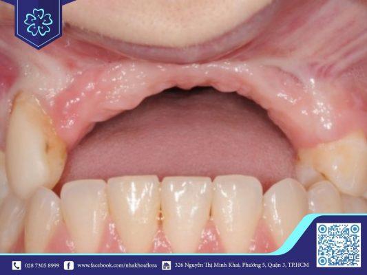 Mất răng bao lâu thì tiêu xương hàm? (ảnh minh họa)