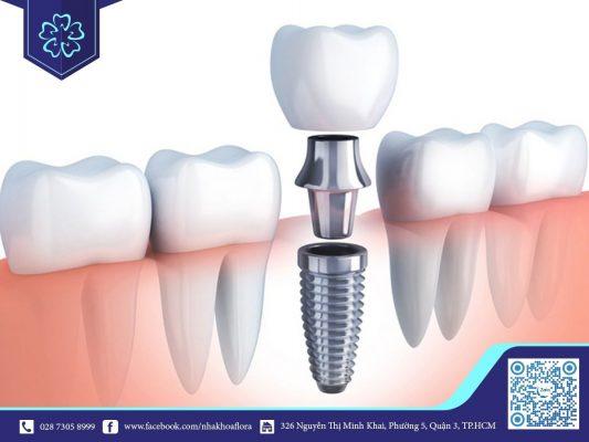 Mất răng hàm dưới có trồng răng Implant được không? (ảnh minh họa)