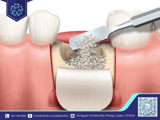 Ghép xương dị chủng (ảnh minh họa)