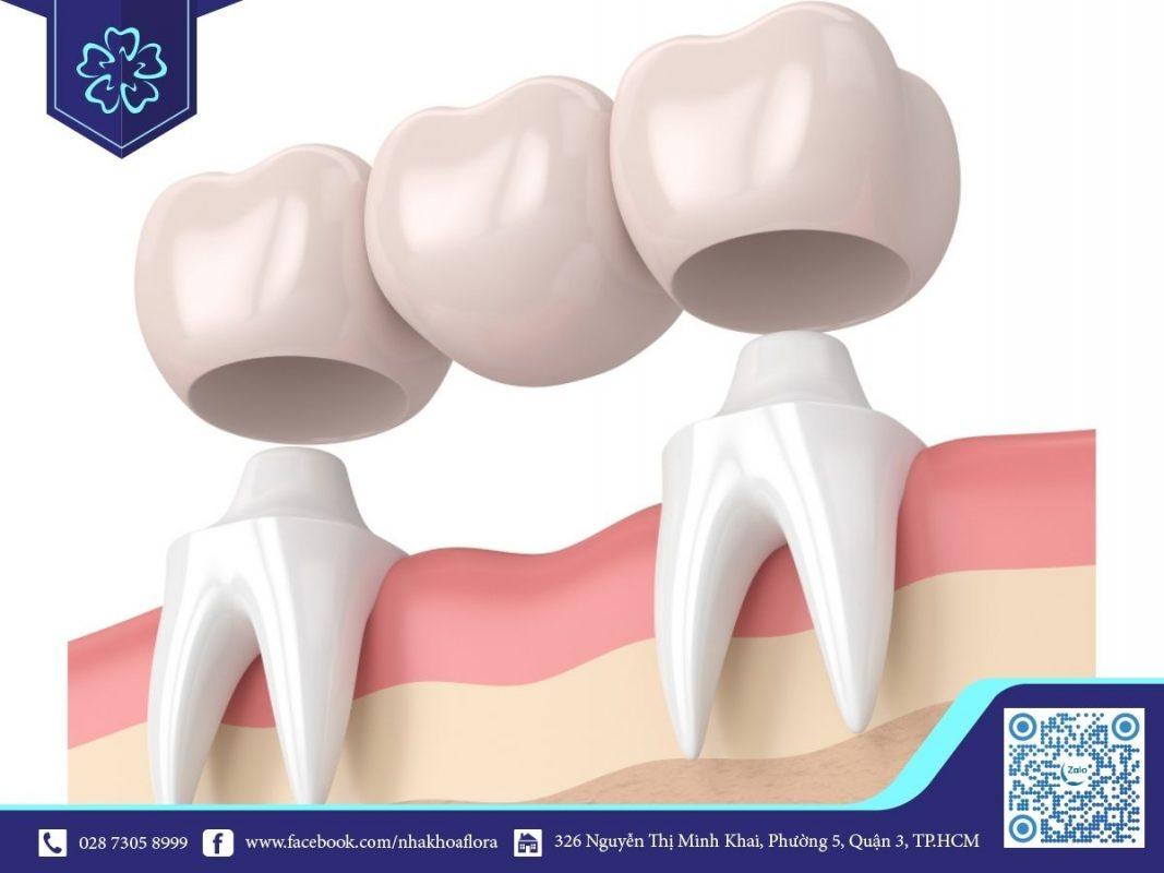 Mất răng số 6 có vẫn có thể niềng răng được và sau đó làm cầu răng sứ (ảnh minh họa)