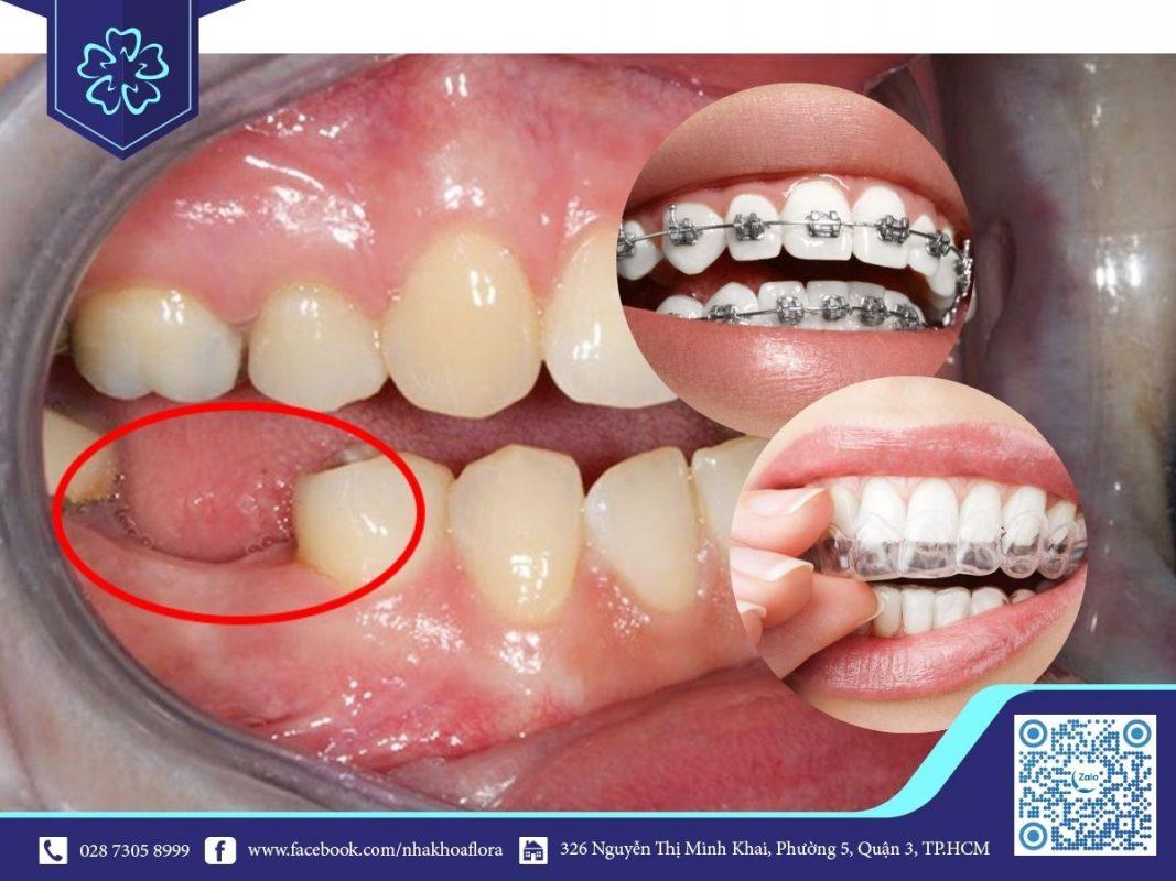 Mất răng số 6 có niềng răng được không? (ảnh minh họa)