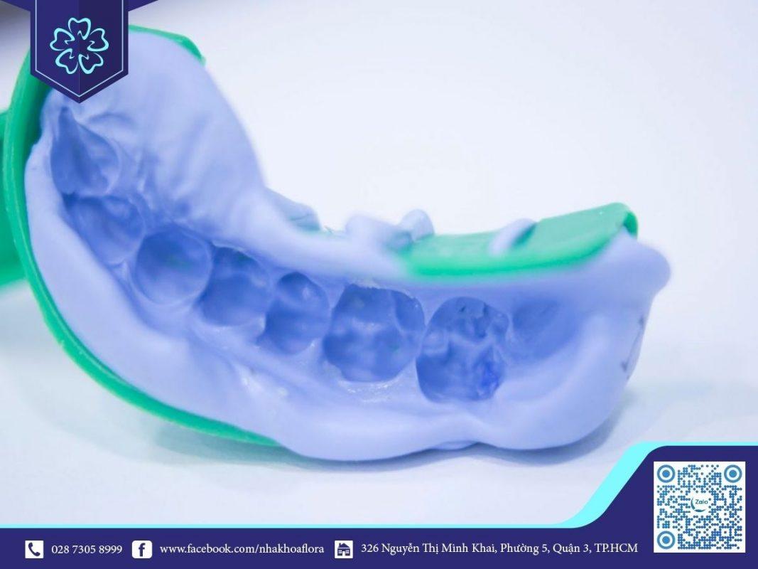 Lấy dấu để phục hồi cầu răng sứ cho răng số 6 (ảnh minh họa)