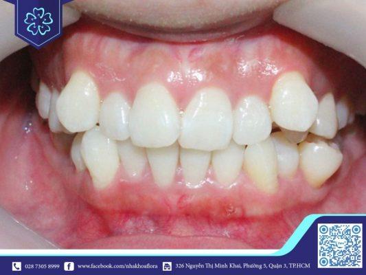 Răng khểnh quá chen chúc nên được nhổ đi (ảnh minh họa)