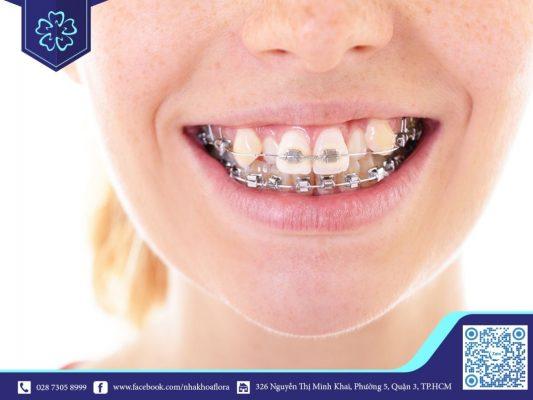 Những người phương Tây thường niềng răng để hạn chế khểnh (ảnh minh họa)
