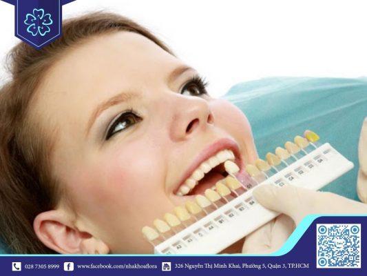 Lựa chọn màu sứ phù hợp với màu răng thật (ảnh minh họa)