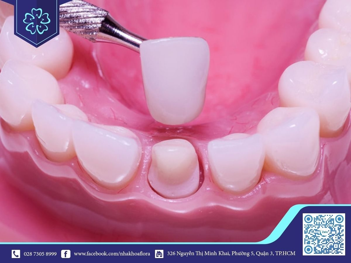 Bọc răng sứ 1 chiếc có được không? (ảnh minh họa)