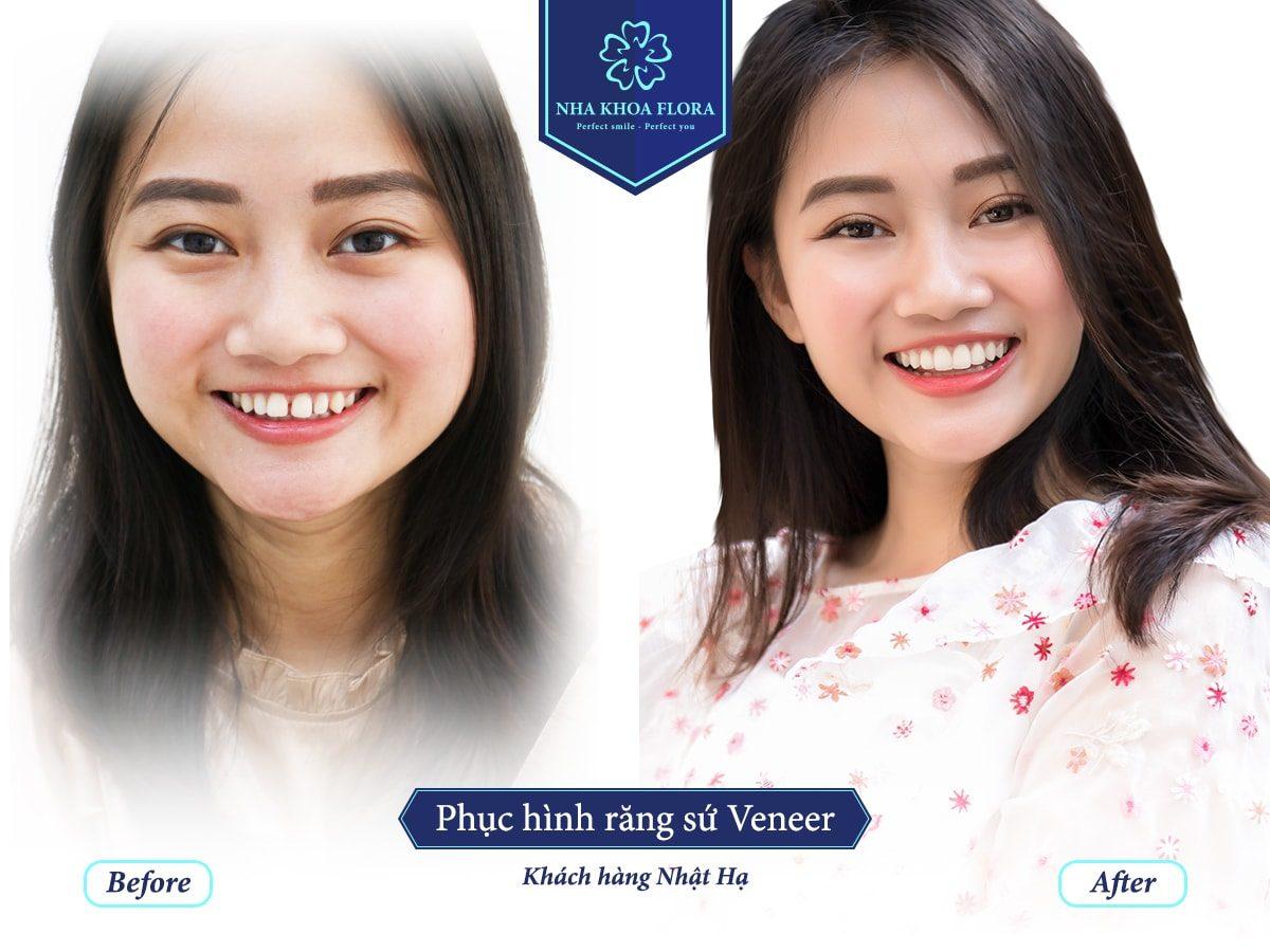 Khách hàng Nhật Hạ bọc răng sứ, thay đổi nụ cười tại nha khoa Flora (ảnh minh họa)