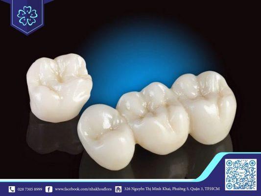 Mão răng sứ trôi nổi, không có nguồn gốc rõ ràng cũng là nguyên nhân gây hôi miệng (ảnh minh họa)