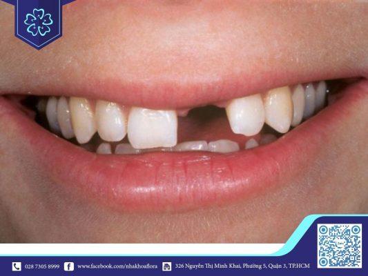 Chi phí cấy ghép Implant phụ thuộc vào tình trạng răng mất (ảnh minh họa)