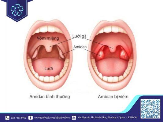 Viêm amidan là một trong những nguyên nhân gây hôi miệng (ảnh minh họa)