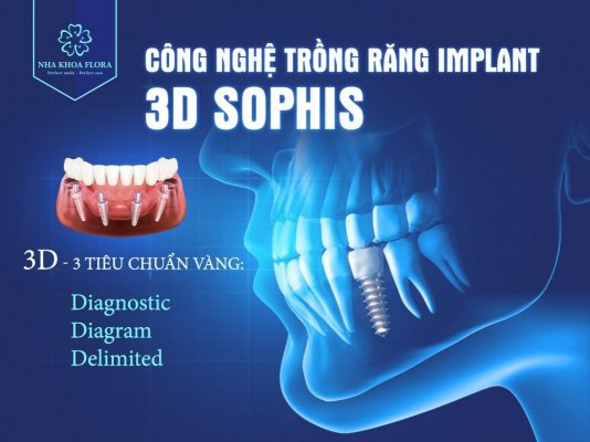 Công nghệ trồng răng Implant 3d Sophis tại nha khoa Flora