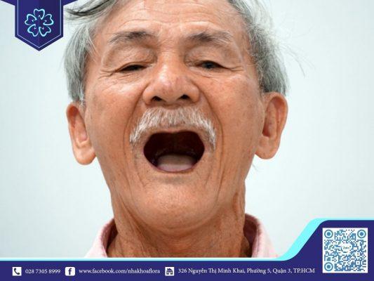Ở độ tuổi này mất răng nhiều do đó cần phải lựa chọn địa chỉ nha khoa cấy ghép Implant uy tín cho người trung niên để đảm bảo an toàn (ảnh minh họa)