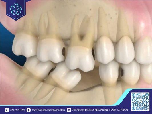 Tiêu xương gây ra tình trạng răng hàm xô lệch (ảnh minh họa)