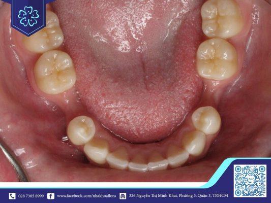 Mất răng lâu năm xuất hiện tình trạng tiêu xương (ảnh minh họa)