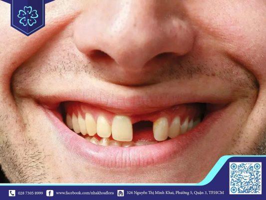 Mất răng lâu năm có trồng răng được không? (ảnh minh họa)