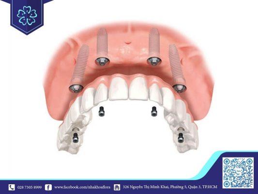 Trồng răng Implant All on 4 (ảnh minh họa)