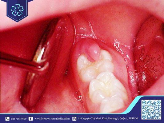 Răng khôn xuất hiện dễ gây ra tình trạng viêm nướu (ảnh minh họa)