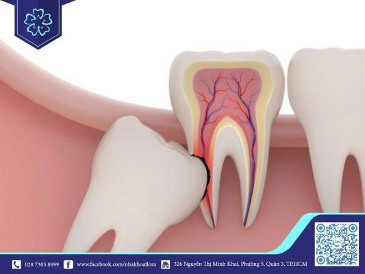 Răng số 8 mọc lệch (ảnh minh họa)