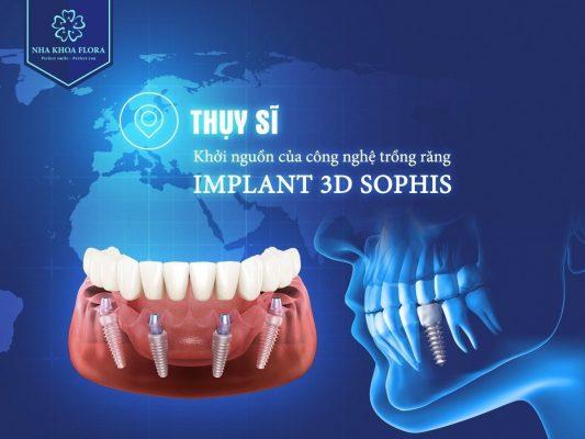 Công nghệ trồng răng Implant 3D Sophis độc quyền tại nha khoa Flora