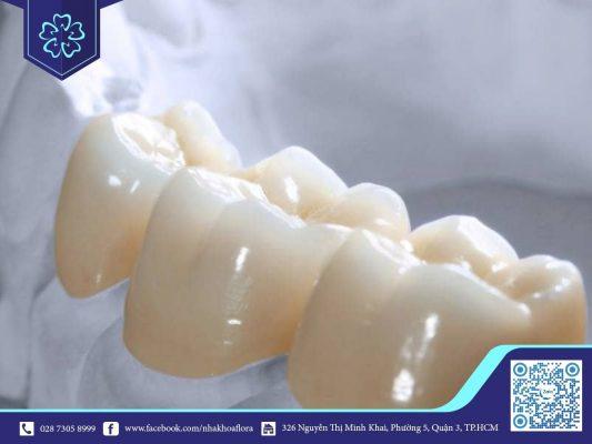 Răng sứ