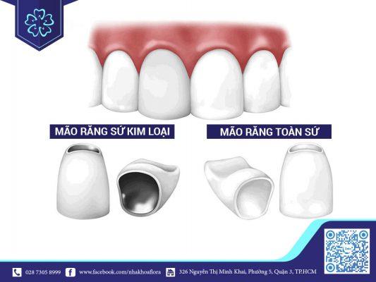 Răng sứ kim loại có tuổi thọ kém hơn răng sứ toàn sứ