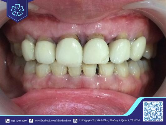 Bọc răng sứ kém chất lượng ảnh hưởng thẩm mỹ và chất lượng răng (ảnh minh họa)