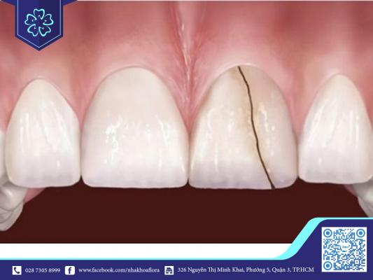 Răng sứ kém chất lượng dễ vỡ, nứt (ảnh minh họa)