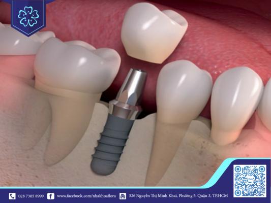 Cấy ghép răng implant có thể phục hồi từ 3 - 14 tuần (ảnh minh họa)