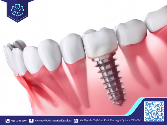 Cấy ghép Implant - Phương pháp phục hổi răng bị mất hiệu quả