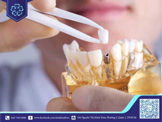 Cấy ghép răng Implant (ảnh minh họa)