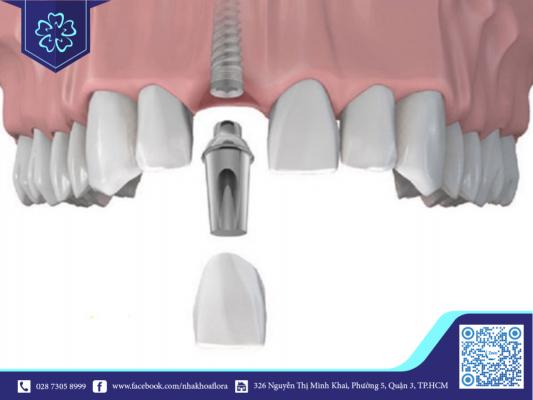 Trụ Implant tích hợp nhanh với xương hàm, rút ngắn quá trình trồng răng implant (ảnh minh họa)