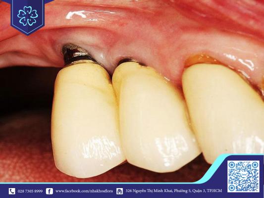 Chân răng bị viêm sau khi cấy răng Implant (ảnh minh họa)