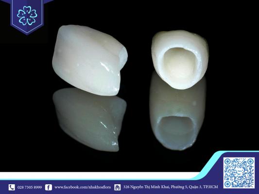 Mão răng sứ toàn sứ (ảnh minh họa)