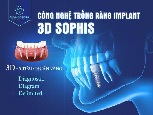 Công nghệ cấy răng Implant 3D Sophis tại Flora