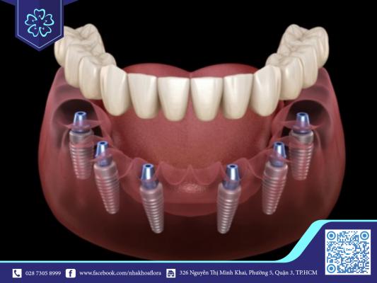 Trồng răng Implant theo phương pháp All on 6